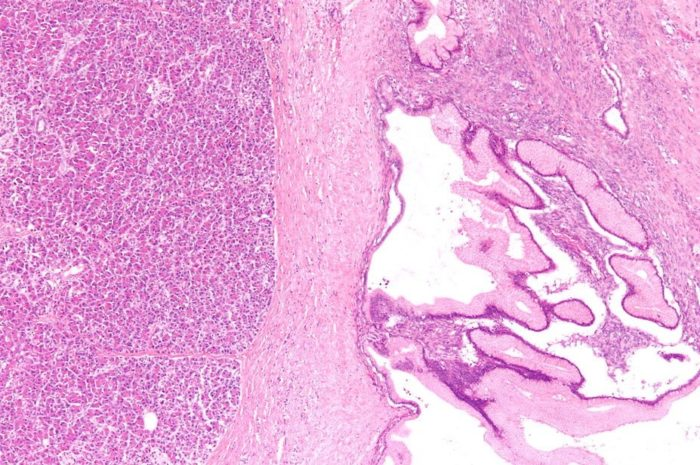 Low magnification micrograph of a benign mucinous tumour of the pancreas, also benign pancreatic mucinous cystic neoplasm, stained pink