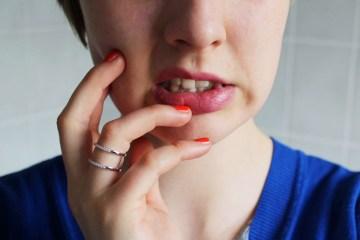 letters&beads-trockene-lippen-was-hilft-title
