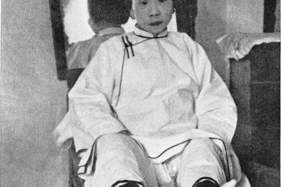 Loto d'oro: i piedi di alcune donne cinesi