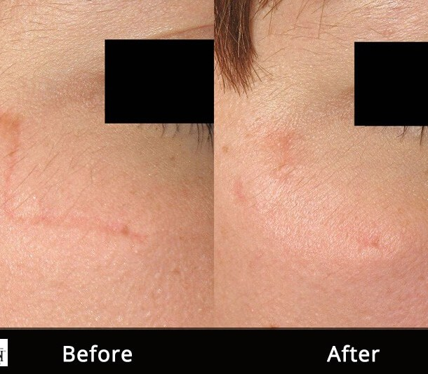 Non Ablative Laser Resurfacing