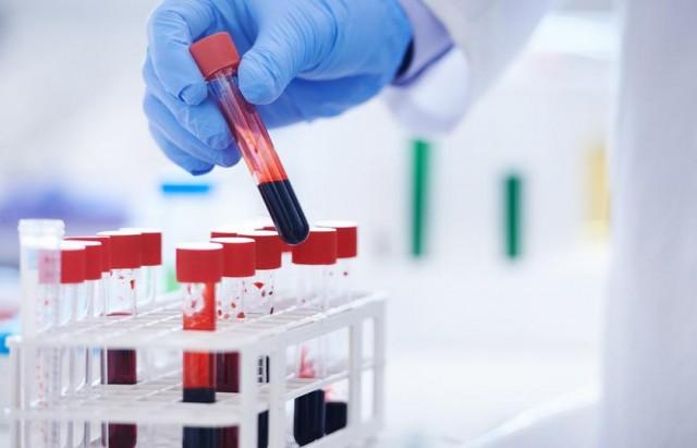 بريطانيا تبدأ أكبر تجربة في العالم لاختبار دم لخمسين نوع من السرطان
