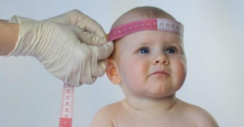 Ministério da Saúde confirma 1.638 casos de microcefalia