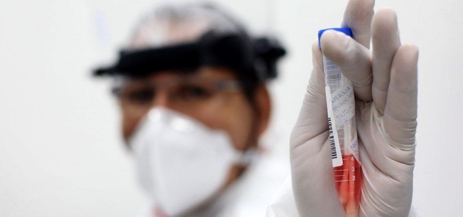 Bahia precisa reduzir transmissão de Covid-19 para evitar colapso na Saúde, diz secretário