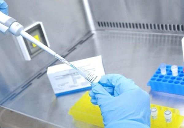 Falha em testes pode ter causado subnotificação de 6.000 mortes por coronavírus
