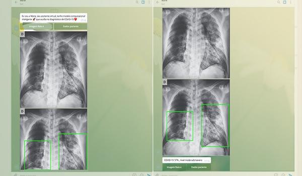 Pesquisadores da USP desenvolvem aplicativo que identifica Covid-19 através de raio-X