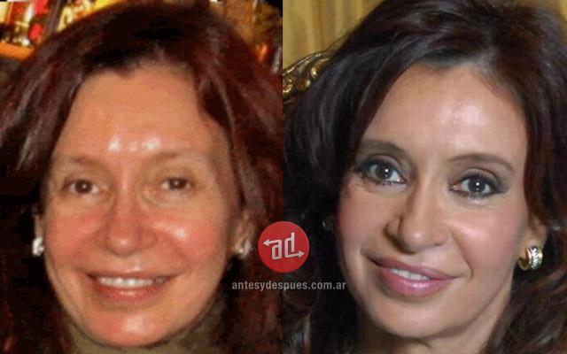 Foto del aumento de labios de Cristina Kirchner