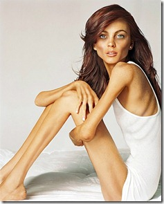 anorexia1206lindsay-lohan (1)