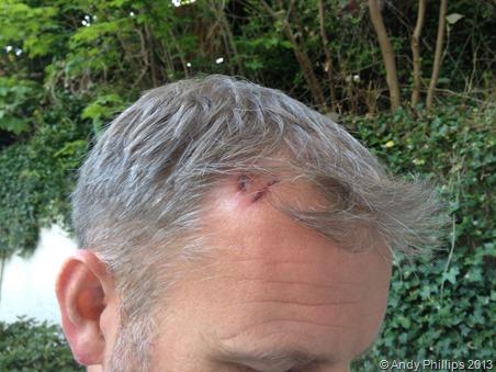 Head wound 2