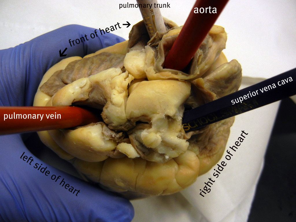 Heart Top Surface Labeled