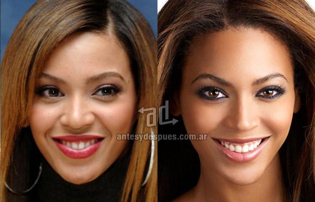 La nueva nariz operada de Beyonce