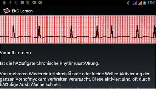 EKG Lernen screenshot 5