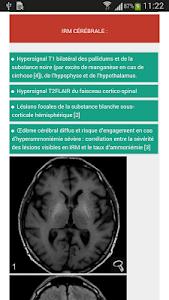 NeuroXdiag screenshot 2