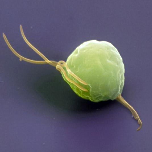 Vulvovaginal candidiasis