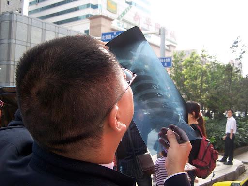 Diagnosis: Solar Eclipse