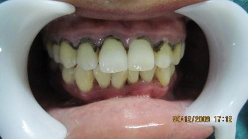 dental calculus
