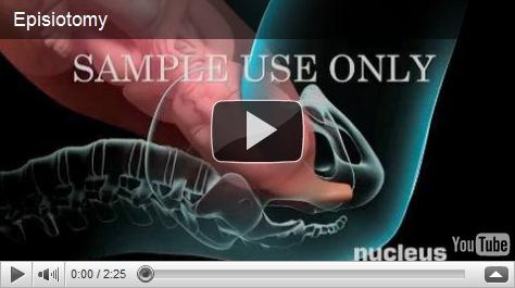 Parto Vaginal y Episiotomía
