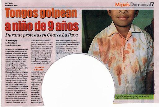 Niño golpeado por intervención de la Polic�a Nacional de Panamá en sus tierras Gnobes