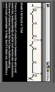 Electrocardiogram ECG Types screenshot 3