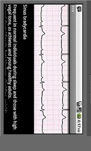Electrocardiogram ECG Types screenshot 2