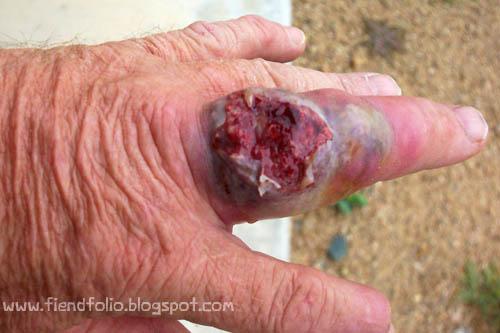 burst finger recluse spider bite