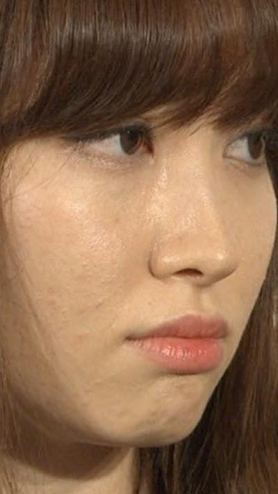 肌荒れがヤバイと話題の小嶋陽菜ちゃんの画像その5