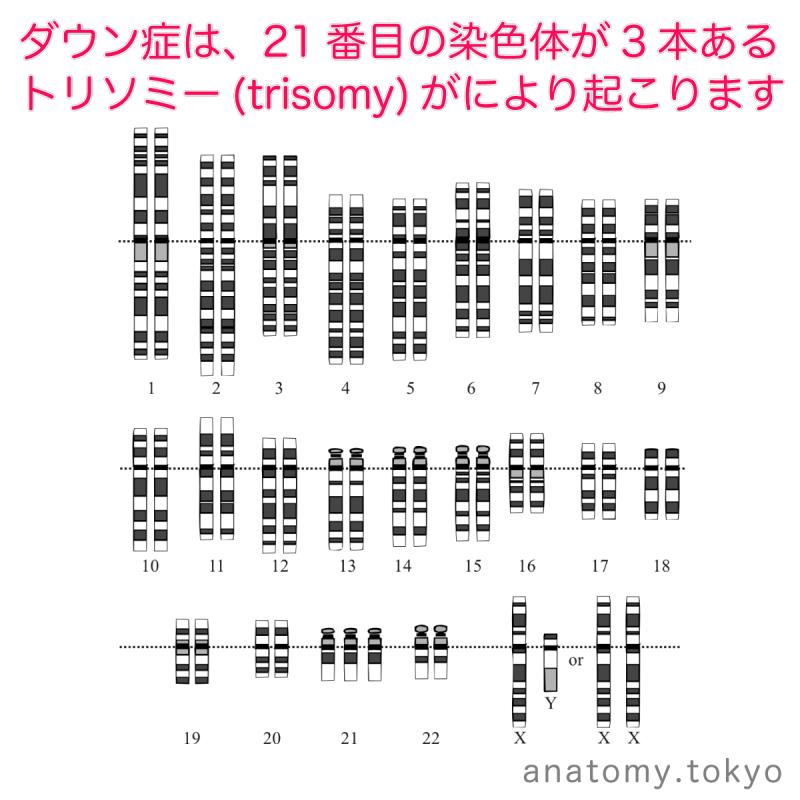 t112-12-ダウン症候群-21番トリソミー.png