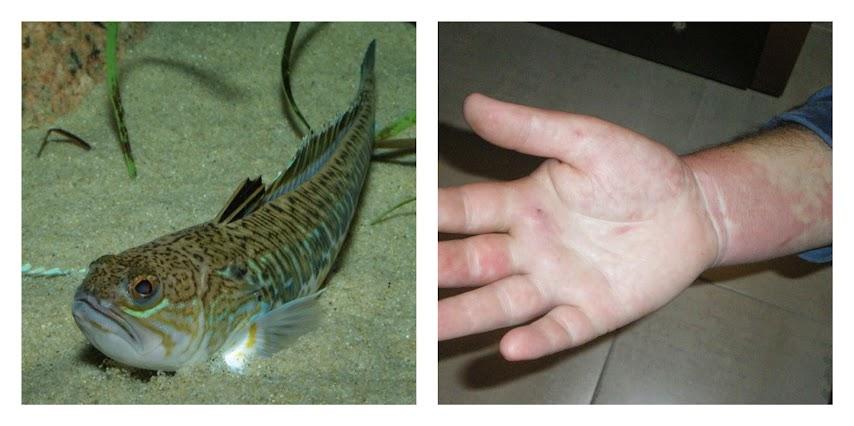 playa-herida-picadura-pez-araña-salud-como-curar