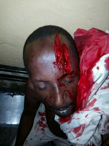 Militants Attack Legendary Hausa Movie Producer & Actor Sheriff Ahlan(Pics)