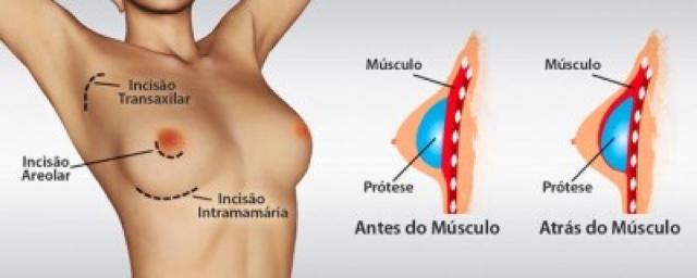 Protese silicone e amamentação