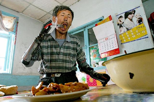 Chinês cria próprias próteses