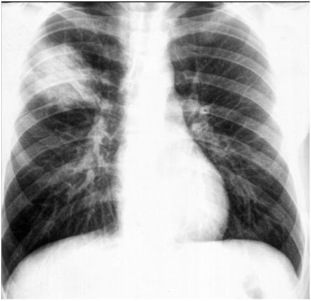 Lobar or pulmonary segment or Segment Pneumonia - Chest X-Ray - Radial Diagnostics of Respiratory System - Radiological Question Answer