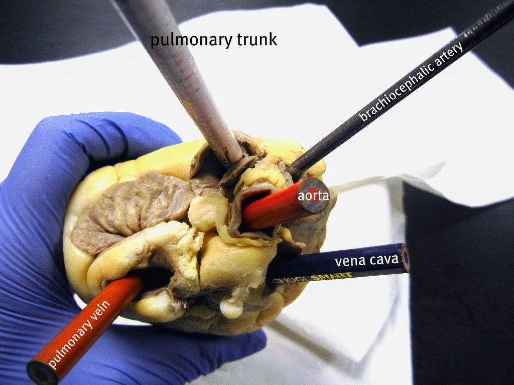 Heart Vessels Identify Labeled