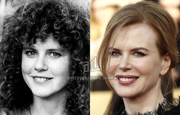 La nueva nariz operada de Nicole Kidman