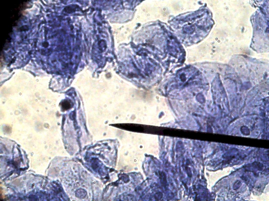 Cell Cheek 06 400x