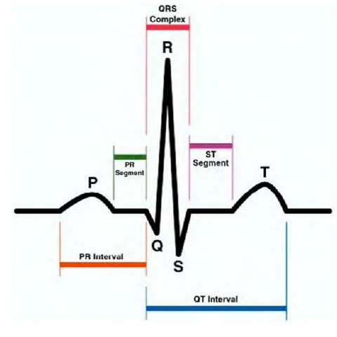 Intelligent Classifier for Atrial Fibrillation (ECG