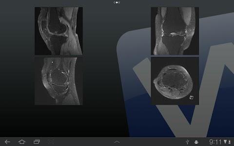 ViewRex Mobile screenshot 15