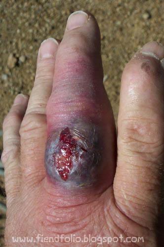 hand wound spider bite