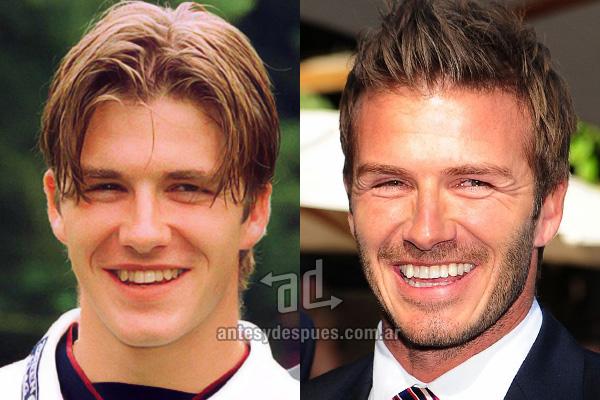 David Beckham y sus nuevos dientes, antes y despues