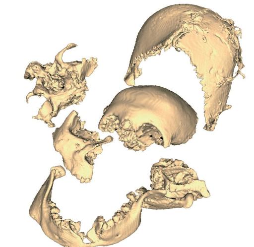 Reconstruction Body Bog