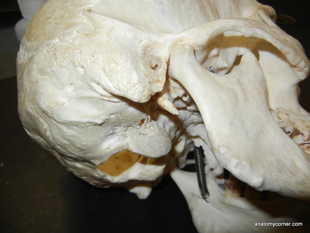 Skull Styloid Process