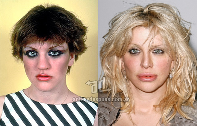 La nueva nariz operada de Courtney Love