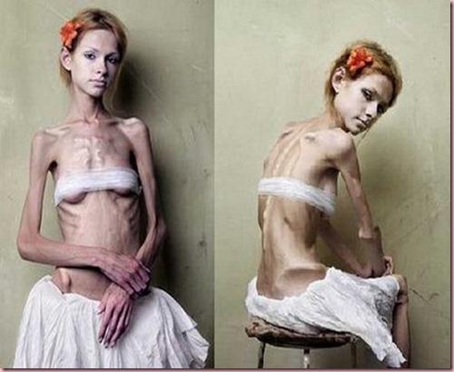 anorexique2