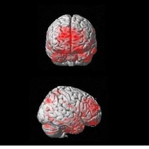 Fibromyalgia Visual Proof
