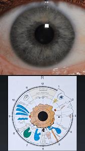 Eye Diagnosis screenshot 2