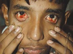 Dengue haemorhagic fever