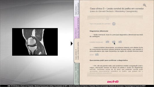 Aché - Ortopedia Joelho screenshot 3