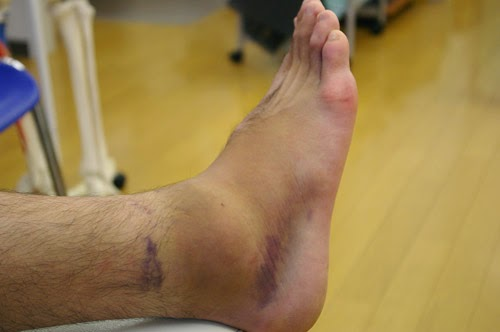 捻挫をした足