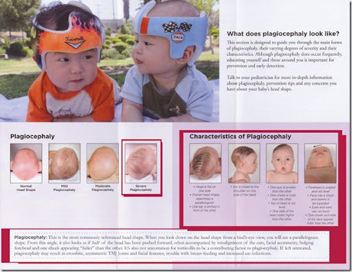 At Our First Appointment With Them They Did A Photostudythey Took Pictures To Outline The Extent Of The Plagiocephaly To Submit To The