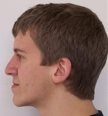 Before bimaxillary osteotomy surgery