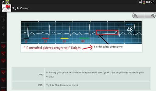 EKG TÜRKÇE screenshot 2